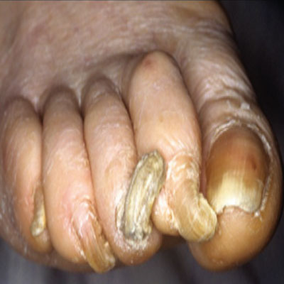 Damaged-nails